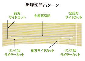 角膜切開パターン