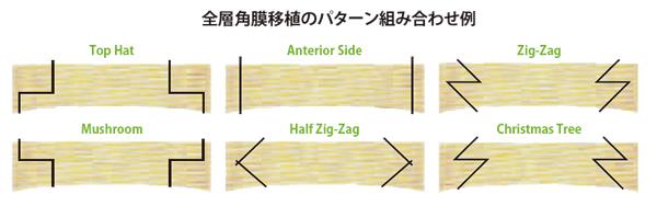 全層角膜移植のパターン組み合わせ例