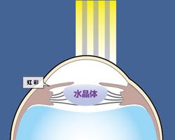 角膜フラップを作成