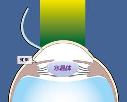 5)エキシマレーザーを照射