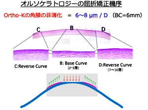 オルソケラトロジーの屈折矯正機序