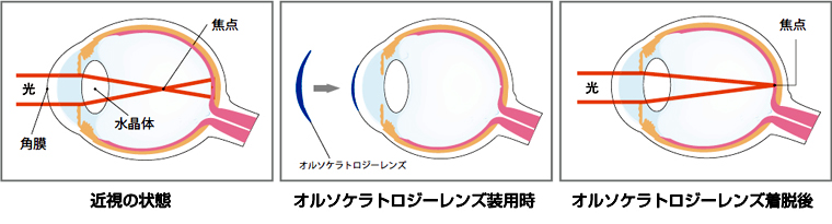 近視の状態 オルソケラトロジーレンジ装用時 オルソケラトロジーレンズ着脱後