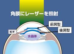 角膜にレーザーを照射